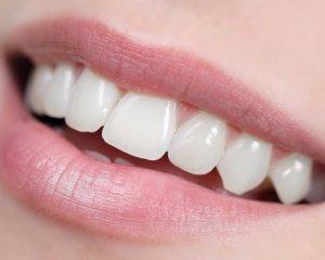 Як зберегти здорові зуби: 5 простих правил